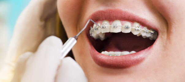 orthodontist adjusting braces